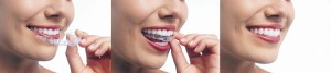 Invisalign and how it works